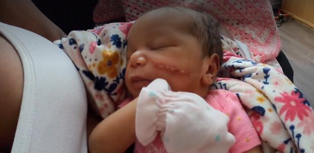 Bé gái vừa chào đời đã phải khâu 13 mũi vì bị bác sĩ rạch vào mặt trong lúc mổ - Ảnh 3.