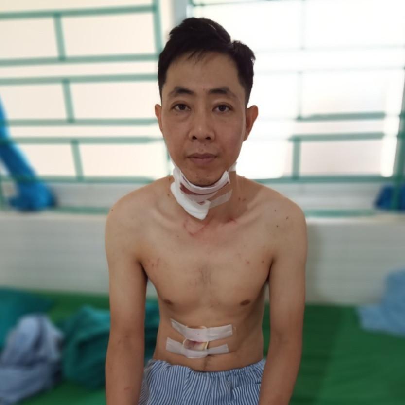 Vụ chồng giết vợ cũ rồi tự sát ở Hà Giang: Đòi gặp không được, chui qua mái nhà vào gây án - Ảnh 3.