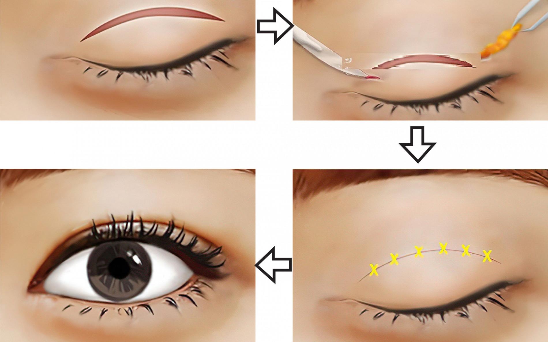 Nhấn mí mắt có hại không? Tác hại của việc nhấn mí mắt