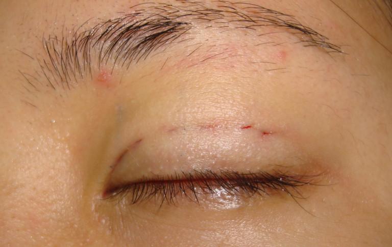Bạn gái thắc mắc: có nên nhấn mí mắt? Nhấn mí mắt có hại không? - Ảnh 3.