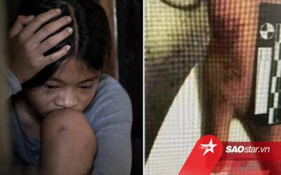 Học hành 'không đạt chuẩn của mẹ', bé gái 12 tuổi bị bạo hành dã man
