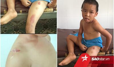 Bé trai 6 tuổi ở Sóc Trăng bị cha dượng gây thương tích, dùng thuốc lá đang cháy châm vào cơ thể