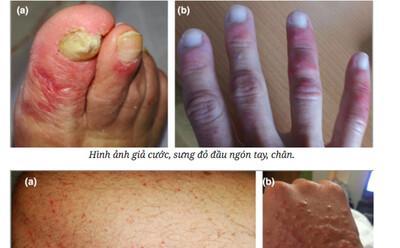 Dấu hiệu nhận biết bệnh Covid-19 qua da
