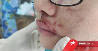 Hà Nội: Cô gái 24 tuổi bị nhiễm trùng vùng mặt nghiêm trọng sau 3 năm tiêm filler