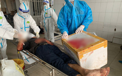 Vụ tài xế xe chở F0 chém đứt lìa tay người đàn ông Bình Dương: Bị chém vì dùng gạch đá ném lên xe?