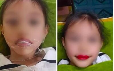 Bé 5 tuổi xăm môi đang 'dậy sóng' trên mạng xã hội: Chuyên gia nói 'chống chỉ định tuyệt đối'