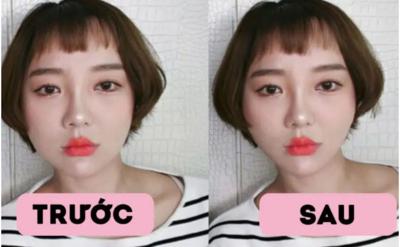 Nhiều người sử dụng miếng dán thon gọn mặt để mặt nhỏ xinh nhưng sự thật có thể khiến bạn đau lòng