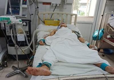 Vụ án mạng 3 người thương vong ở Quảng Nam: Vợ cũ kể lại giây phút bị chồng dùng dao chém vào đầu